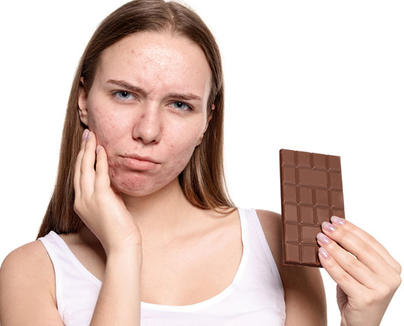 Acne And Chocolates
