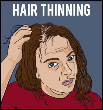 Hereditary Hair Loss – Living in Denial Part 3