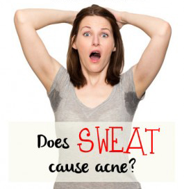 Sweating Causes Acne