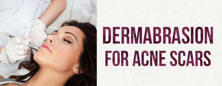 Acne And Derma Abrasion