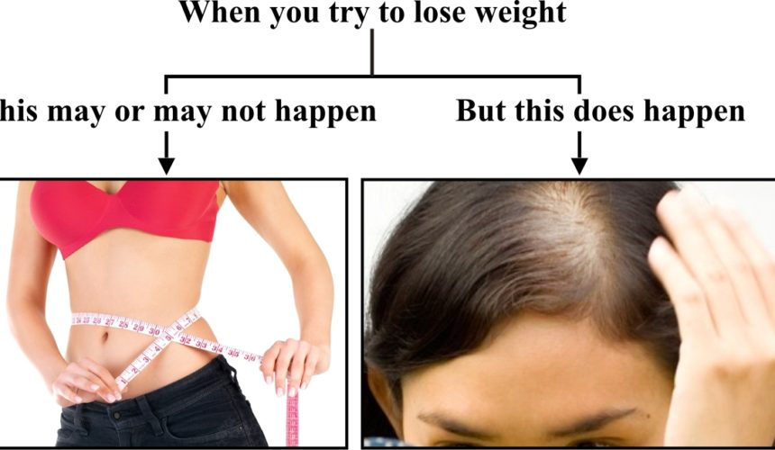Hair Loss Due To Dietary Deficiency And Weight Loss