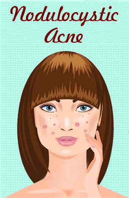 Acne At Its Worst