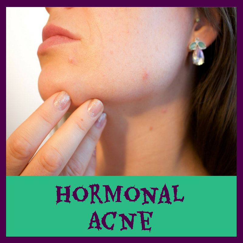 Hormonal Impact On Acne