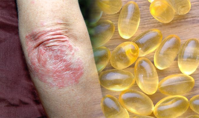 Omega-3 For Psoriasis