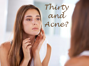 Thirty and Acne?